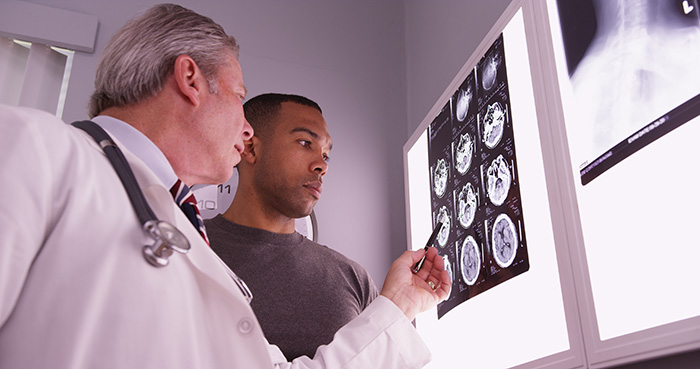traumatic brain injury treatment Allista